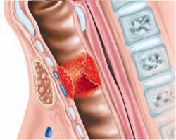 стеноз гортани лечение