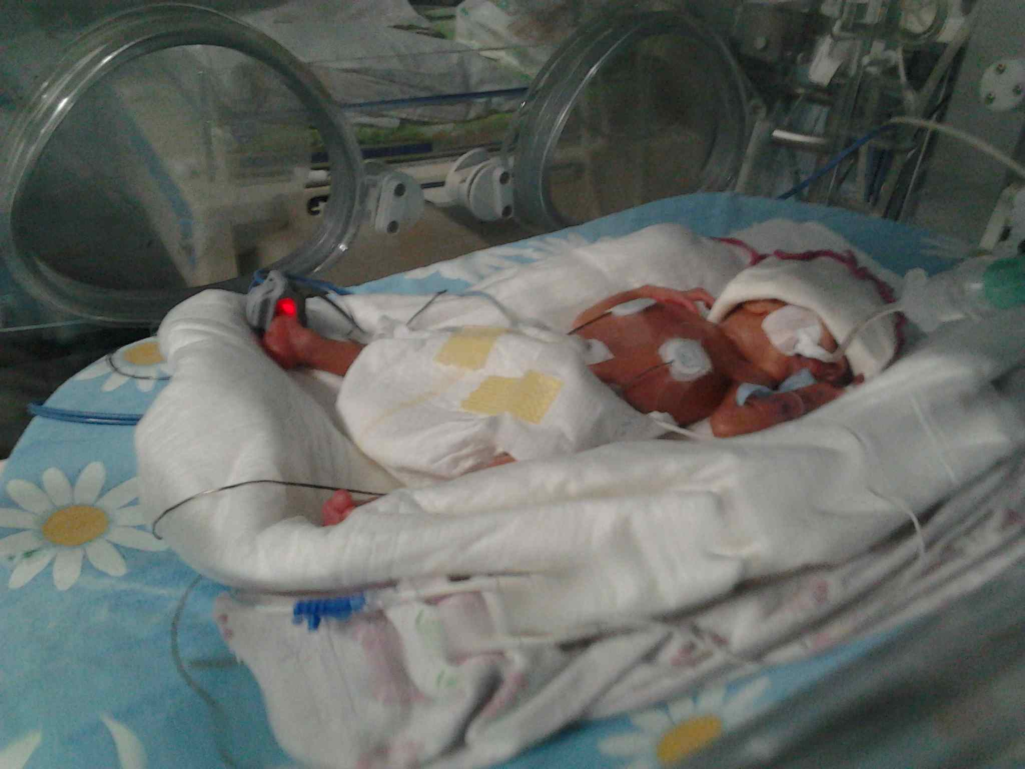 Недоношенный ребенок 26 недель фото